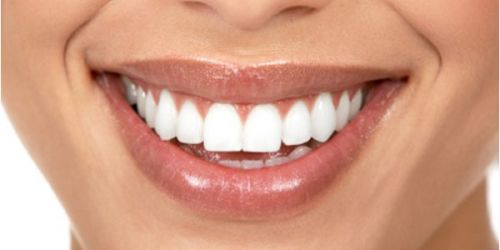 Smile Professionals - Reliable Cosmetic Dentistry in Perth